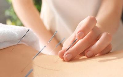 5 beneficios de la acupuntura