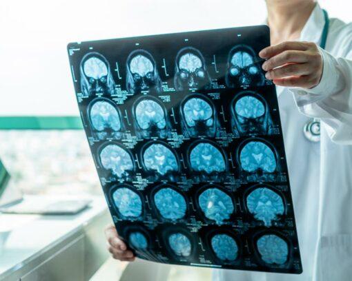 Estudiar el Máster en Neurología para tratar con pacientes que presentan enfermedades neurológicas como el Alzheimer o el Parkinson