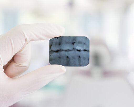 postgrado-experto-en-radiologia-dental